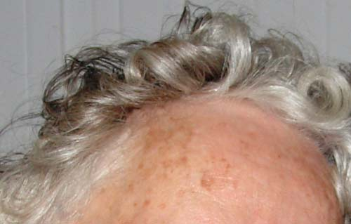 Age Spots-Home Remedy-Natural Cures