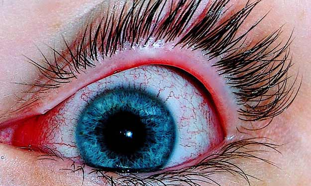 Close Up of Woman's Eye with Conjunctivitis.